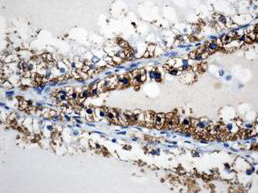 Immunohistochemistry (Formalin/PFA-fixed paraffin-embedded sections) - Anti-CD26 antibody (ab61825)