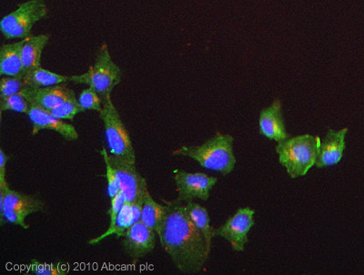 Immunocytochemistry/ Immunofluorescence - CLIP170 antibody [mAbcam61830] (ab61830)
