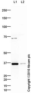 Western blot - AKR1B10 antibody (ab61832)