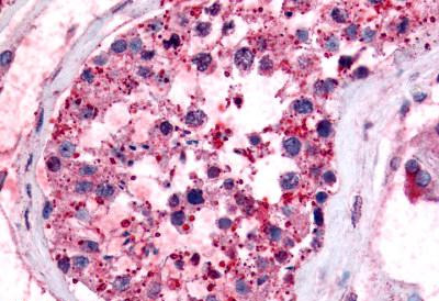Immunohistochemistry (Formalin/PFA-fixed paraffin-embedded sections) - Anti-Prostaglandin E Synthase antibody (ab62049)