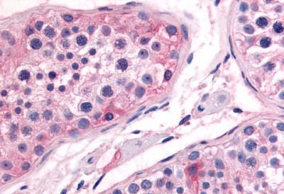 Immunohistochemistry (Formalin/PFA-fixed paraffin-embedded sections) - Anti-Prostaglandin E Synthase antibody (ab62050)