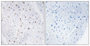 Immunohistochemistry (Formalin/PFA-fixed paraffin-embedded sections) - Blooms Syndrome Protein Blm (phospho T99) antibody (ab62206)