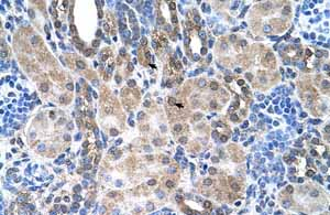 Immunohistochemistry (Formalin/PFA-fixed paraffin-embedded sections)-Anti-SLC6A18 antibody(ab62269)
