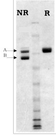 SDS-PAGE - Factor XIIIa protein (ab62412)