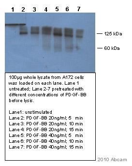 Western blot - PDGF Receptor beta (phospho Y1021) antibody (ab62437)