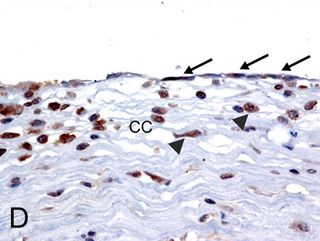 Immunohistochemistry (Formalin/PFA-fixed paraffin-embedded sections) - Anti-MICA antibody (ab62540)