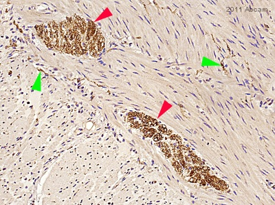 Immunohistochemistry (Formalin/PFA-fixed paraffin-embedded sections) - Tau antibody (ab62639)