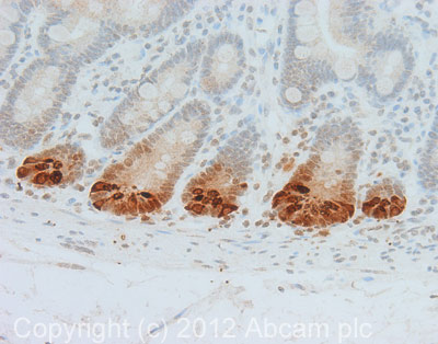 Immunohistochemistry (Formalin/PFA-fixed paraffin-embedded sections) - Anti-alpha Defensin NP5 antibody [8C8] (ab62757)