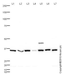 Western blot - AKR1B1 antibody (ab62795)