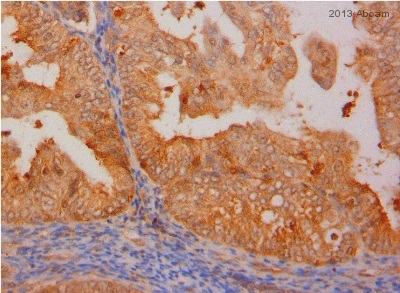 Immunohistochemistry (Formalin/PFA-fixed paraffin-embedded sections) - Anti-AKR1B1 antibody (ab62795)