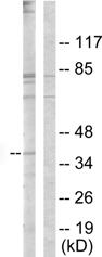 Western blot - NCF1 antibody (ab63361)