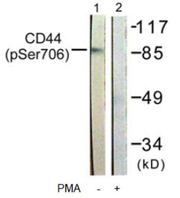 Western blot - Anti-CD44 (phospho S706) antibody (ab63389)