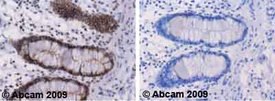 Immunohistochemistry (Formalin/PFA-fixed paraffin-embedded sections)-NEK9 (phospho T210) antibody(ab63553)