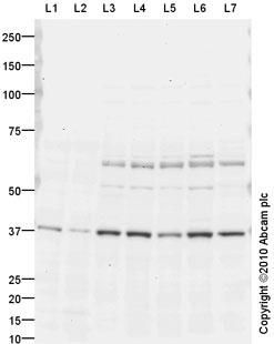 Western blot - MICA antibody (ab63709)