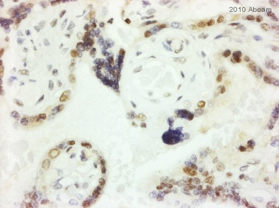 Immunohistochemistry (Formalin/PFA-fixed paraffin-embedded sections) - TNF Receptor I antibody (ab64006)