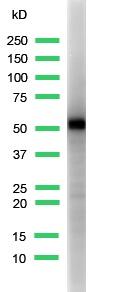Western blot - Cytokeratin 5 antibody [SP27] - Carboxyterminal end (ab64081)