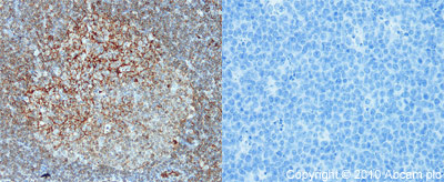 Immunohistochemistry (Formalin/PFA-fixed paraffin-embedded sections) - CD80 antibody (ab64116)