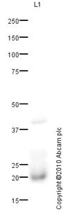 Western blot - Niemann Pick C2 antibody (ab64183)