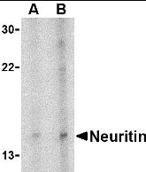 Western blot - Neuritin antibody (ab64186)