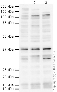 Western blot - TIGAR antibody [M2-P4H2] (ab64622)