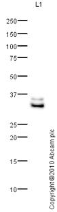 Western blot - C1q antibody (ab64632)