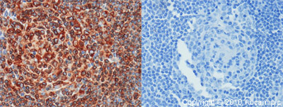 Immunohistochemistry (Formalin/PFA-fixed paraffin-embedded sections) - CD74 antibody (ab64772)