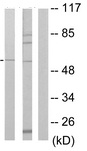 Western blot - Anti-PKA beta (catalytic subunit) antibody (ab64801)