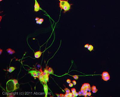 Immunocytochemistry/ Immunofluorescence-ARRDC3 antibody(ab64817)