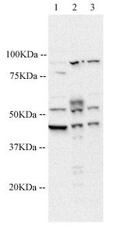 Western blot - 5HT1A Receptor antibody (ab64994)