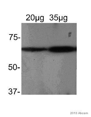 Western blot - Anti-CRSP7 antibody (ab65112)
