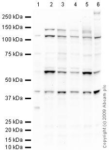Western blot - Inversin antibody (ab65187)