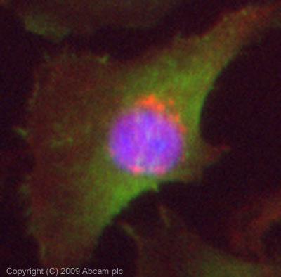 Immunocytochemistry/ Immunofluorescence - Inversin antibody (ab65187)