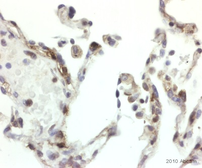 Immunohistochemistry (Formalin/PFA-fixed paraffin-embedded sections) - Anti-Dynamin 2 antibody (ab65556)