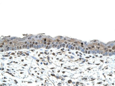 Immunohistochemistry (Formalin/PFA-fixed paraffin-embedded sections) - Anti-CENPA antibody (ab65678)