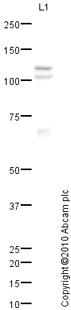 Western blot - Zinc finger MIZ domain-containing protein 1 antibody (ab65767)