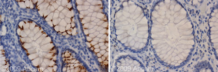 Immunohistochemistry (Formalin/PFA-fixed paraffin-embedded sections)-Kir2.1 antibody(ab65796)