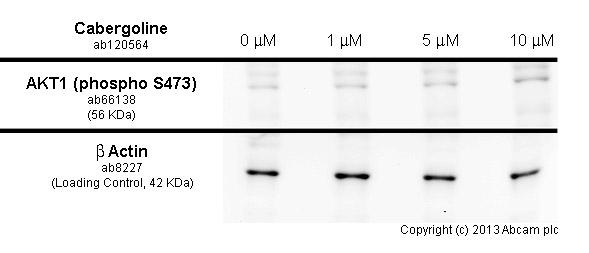 Western blot - Anti-AKT1 (phospho S473) antibody (ab66138)