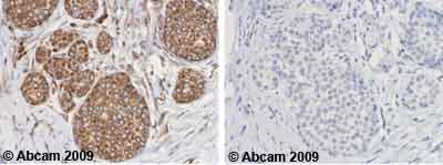 Immunohistochemistry (Formalin/PFA-fixed paraffin-embedded sections) - Anti-MMP12 antibody - Carboxyterminal end (ab66157)