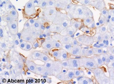 Immunohistochemistry (Formalin/PFA-fixed paraffin-embedded sections) - ABCA1 antibody [HJ1] (ab66217)