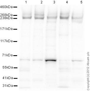 Western blot - Anti-ABCA1 antibody [HJ1] (ab66217)