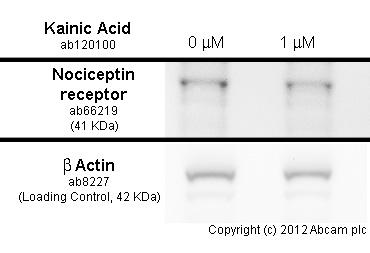 Western blot - Anti-Nociceptin receptor antibody (ab66219)