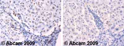 Immunohistochemistry (Formalin/PFA-fixed paraffin-embedded sections) - Neurogenin 1 antibody (ab66498)