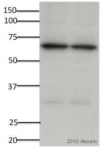Western blot - Pyruvate Dehydrogenase E2 antibody (ab66511)