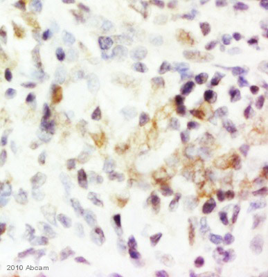 Immunohistochemistry (Formalin/PFA-fixed paraffin-embedded sections) - TNF alpha antibody (ab66579)