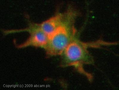 Immunocytochemistry/ Immunofluorescence - Kv4.2 antibody (ab66639)