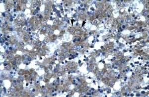 Immunohistochemistry (Formalin/PFA-fixed paraffin-embedded sections)-Anti-SPT3 antibody(ab66892)