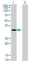 Western blot - Anti-HSD17B8 antibody (ab67016)
