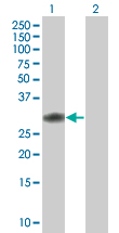 Western blot - CCDC88B antibody (ab67054)