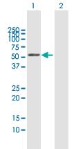 Western blot - BCCIP antibody (ab67119)