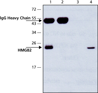 Immunoprecipitation - HMGB2 antibody (ab67282)